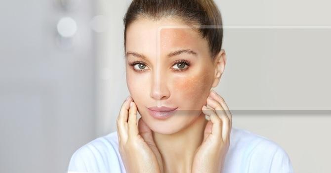 Melasma Laser Treatment